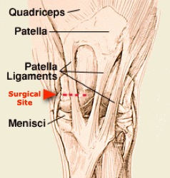 Distal Patellar Apparatus