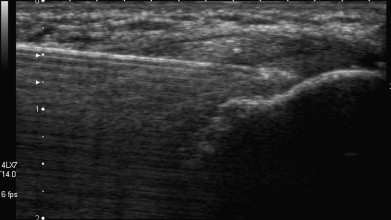 Prolotherapy Injection with Ultrasound Guidance